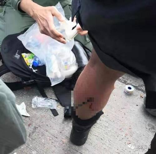 令人发指!港警被暴徒弓箭射腿、钢珠击面