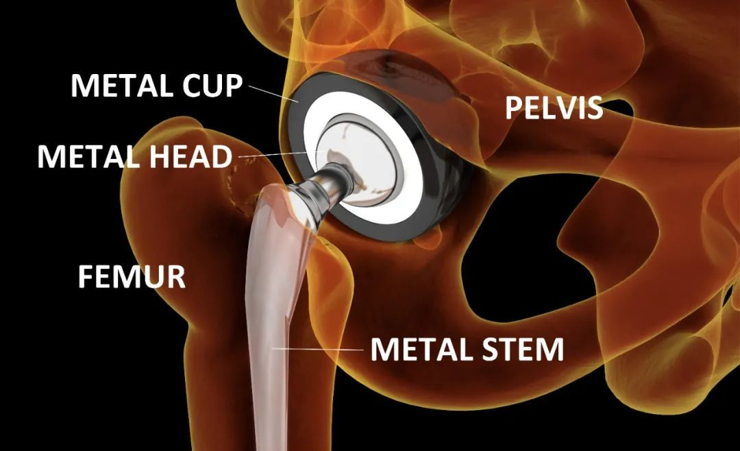 威高骨科:骨科医疗器械的隐形冠军